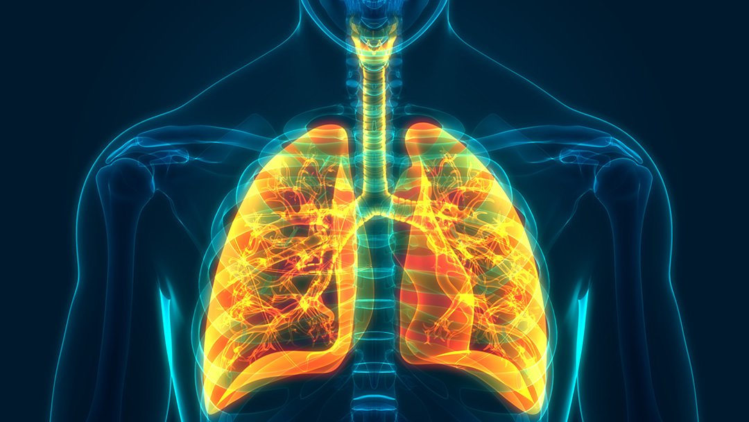 Flying with pneumothorax